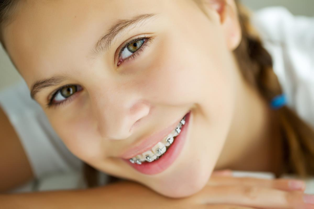 orthodontic services Mesa, Chandler, and San Tan Valley, AZ